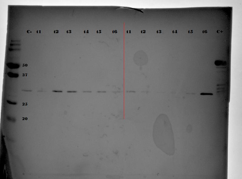 Western Blot Secondary Antibody Overnight Room Temperature